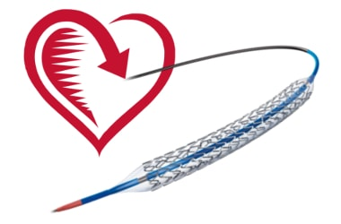 Capped Prices of Coronary Stent - Pros and Cons